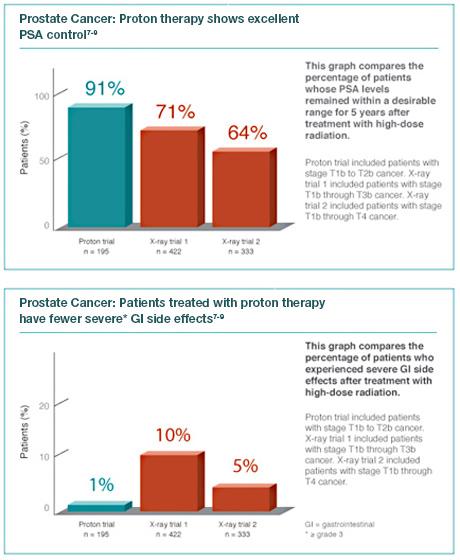 prostate tumor treatment northwestern medicine chicago proton centerproton therapy prostate
