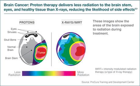 Proton Therapy Benefits   Northwestern Medicine Chicago