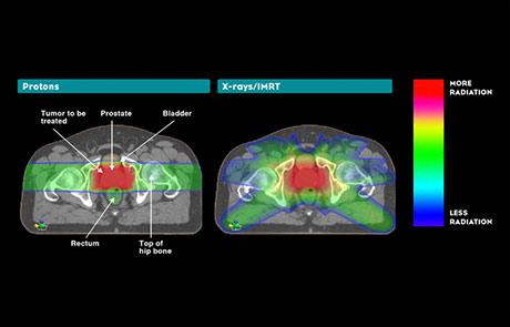 Prostate Cancer And Proton Therapy Northwestern Medicine Chicago Proton Center