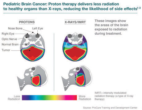 Chicago Proton Center